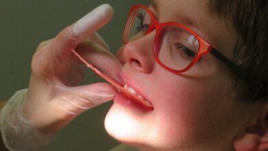 Photo of Несъемные ортодонтические аппараты для детей: преимущества и недостатки