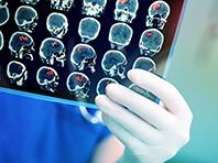 Photo of Прорыв: неврологи придумали, как избежать негативных последствий инсульта