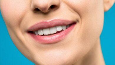 Photo of Почему зуб изменил цвет: частые причины потемнения эмали