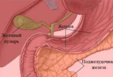 Photo of Болезнь гастродуоденит: обострения
