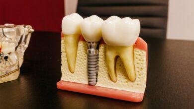 Photo of Хирург-имплантолог «Дентатэк» Геннадий Пермяков – о восстановлении зубов за одну процедуру по методике All-on-4