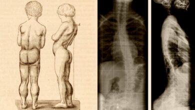 Photo of 5 фактов о болезни Дюшенна, которые должны знать родители мальчиков
