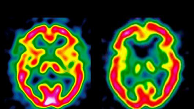 Photo of Энцефалопатия: диагностика и лечение
